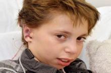 หนุ่มน้อยยิ้มรับใบหูคู่ใหม่ หลังจากผ่าตัดสำเร็จ
