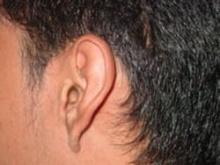 วิธีกำจัดขี้หู โดยไม่ต้องแคะ