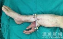สุดเหลือเชื่อ! ผ่าตัดพิสดารเย็บมือคนไข้ขาดไว้ที่เท้า ก่อนรักษาได้อย่างฉลุย