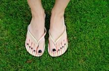 5 ข้อที่ทำให้รองแตะกลายเป็นรองเท้าที่อันตรายที่สุด