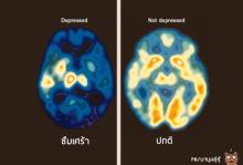 ภาพที่แสดงให้เห็น ความแตกต่างระหว่าง สมองคนปกติ และ คนที่มีเกณฑ์ ฆ่าตัวตาย....