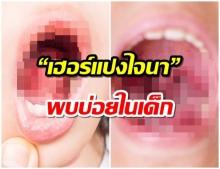 โรคพบบ่อยในเด็ก เฮอร์แปงไจนา เจ็บคอ ผื่นแผลในปาก แนะล้างมือบ่อยๆป้องกันโรค