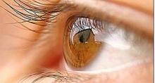 ผ่าตัดเปลี่ยนกระจกตาเทียม