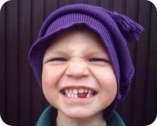 ของหวานทำให้ฟันผุได้อย่างไร ?