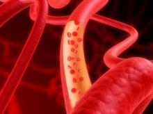 รู้จักเส้นเลือดและวิธีหยุดเลือด