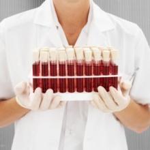 ทำเลือดสังเคราะห์ ใช้รักษาทหาร ที่ได้รับบาดเจ็บในสมรภูมิ