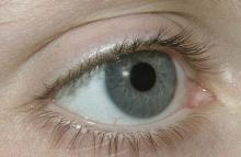 แสงแดดภัยร้าย..กับดวงตาของคุณ