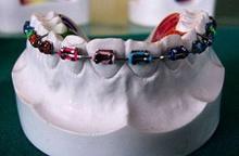่ดัดฟันแฟชั่น อันตรายถึงตาย !!??