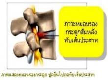 การรักษาโรคหมอนรองกระดูกเคลื่อนโดยไม่ผ่าตัด