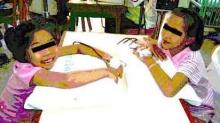 พบผู้ป่วยธาลัสซีเมียเพิ่มขึ้นเป็นปีละ 12,000 คน