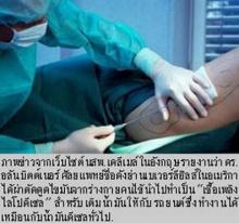 หมอศัลยกรรมเสริมสวยทำพิเรนทร์ สกัดไขมันคน เป็นน้ำมันรถ
