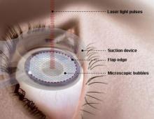 โรคตาแห้ง (Dry Eyes)