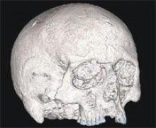 สมองคนอายุ2,000ปี