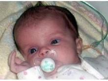 แพทย์อังกฤษใช้กาวยับยั้งการเติบโตของเนื้องอกในสมองเด็กทารก
