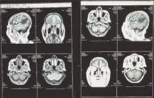 หลีกเลี่ยง 10 นิสัย ทำร้ายสมอง