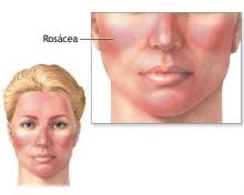 โรคหน้าแดง โรซาเซีย