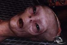 เลือดสีเขียว หมอผ่าตัดคิดว่ามนุษย์ต่างดาว