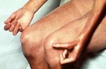 โรคหนังแข็ง (scleroderma)