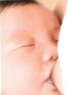ประโยชน์ของการเลี้ยงลูกด้วยนมมารดา ช่วยหลบมะเร็งเต้าน
