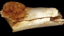 ตะลึง...พบก้อนมะเร็งในกระดูกบรรพบุรุษมนุษย์อายุ 1.7 ล้านปี!!!