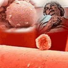การพัฒนาเจลทาช่องคลอดกันเชื้อเอชไอวี มีความคืบหน้า