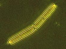 เจ้า Bacillus เพื่อนที่คอยแทงข้างหลัง