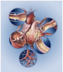 Viagra ใช้รักษาโรคหัวใจได้