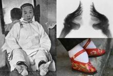 """""""เท้าดอกบัว"""" ค่านิยม ความงามสุดทรมานของ สาวจีนโบราณ"""