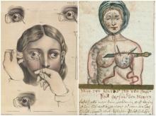 เจ๋ง!! 16 ภาพตำทางการแพทย์ในอดีต ที่หลายคนไม่เคยเห็นมาก่อน